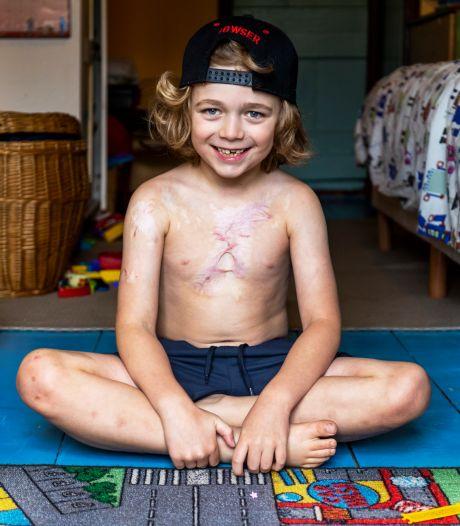 Dean (6) kreeg als peuter een kom hete soep over zich heen: 'Ik vind mijn littekens eigenlijk wel cool'