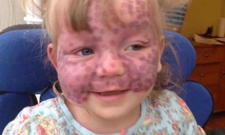 Een echte vechter: meisje werd geboren met zeldzame zenuwaandoening