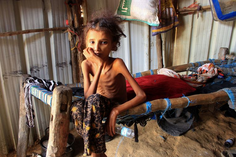 Een tienjarig meisje zit op de rand van haar bed. Ze komt uit Jemen, uit de noordelijke streek Hajjah. Door de voortdurende oorlog en de daardoor ontstane voedseltekorten, weegt ze nog maar tien kilo. Beeld AFP