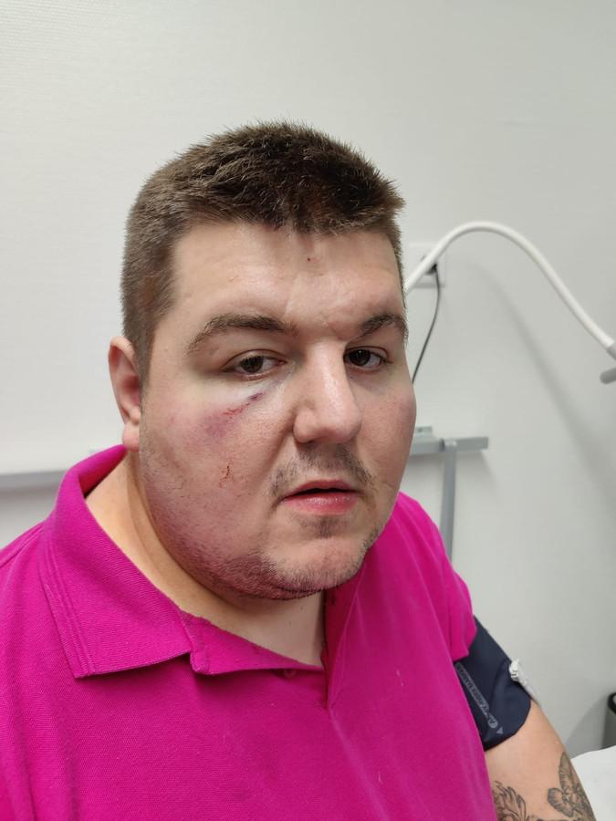 Het gehavende gezicht van Lorenzo Lubbers na de vechtpartij in Almelo.