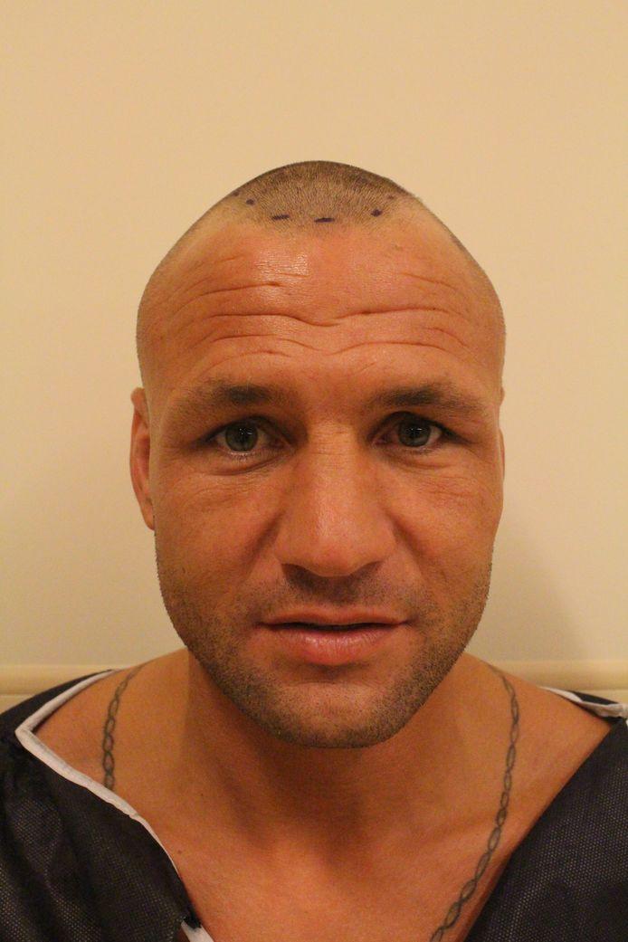 Kickbokser Chris van Venrooij uit Arnhem, voor zijn haartransplantatie in Istanboel. FOTO: Hairworld Istanbul