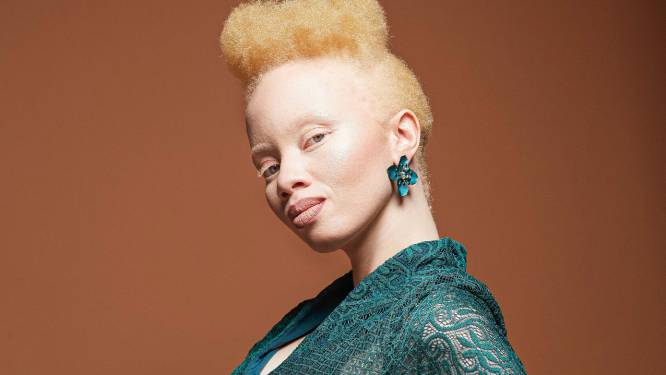 """Jurist en model Thando Hopa (31) komt op voor mensen met albinisme: """"Racisme is niet zo simpel als zwart versus wit"""""""
