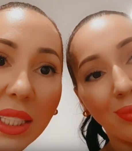 Identiekste eeneiige tweeling ter wereld onder vuur wegens gevaarlijke levensstijl