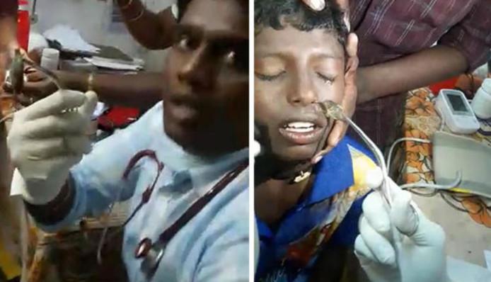 Un médecin du sud de l'Inde a réussi à enlever un poisson vivant de la narine d'un garçon de 13 ans.