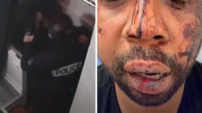 Vier Franse agenten aangeklaagd voor minutenlang afranselen zwarte man
