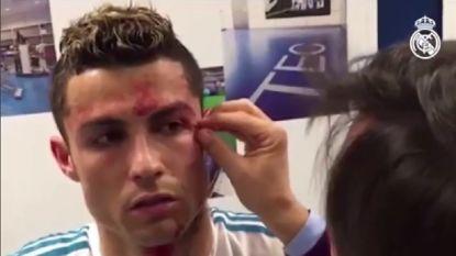 VIDEO: Zo werd Cristiano Ronaldo verzorgd aan zijn snijwonde nadat hij de show stal met gsm van clubdokter