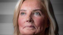 """Slachtoffer zuurgooier na 50 operaties weer in de winkel: """"Ik schrik van het minste, maar ik verstop me niet"""""""