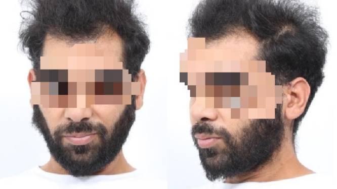 Verdachte bioscoopmoorden in Groningen gearresteerd, politie lost schoten