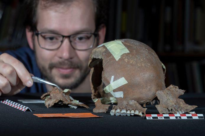 Fysisch antropoloog Willem Baetsen toont de gevonden schedelresten van de Alphense ijzertijd-mens Max. Inzet: Max had een gezond gebit met hooguit wat tandsteen.