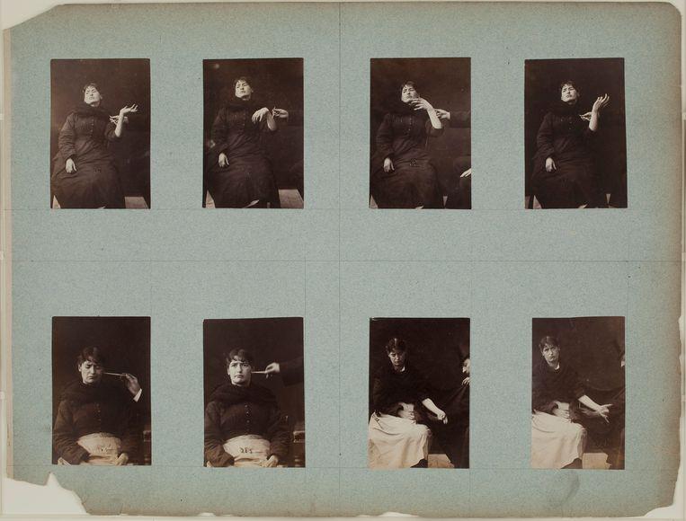 Albert Londe maakte in het ziekenhuis foto's van hysterieaanvallen, zoals hier bij mevrouw Barret. Hysterie werd vaak in één adem genoemd met seksualiteit. Misschien was dat de reden dat de aandoening op het eind van de 19de eeuw in Parijs hip werd.  Cabaretdanseressen deden de bewegingen van de hysterische vrouwen na. Beeld Galerie Baudoin Lebon