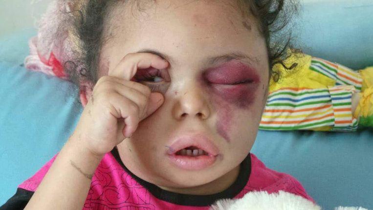 Buthaina is vier of vijf jaar oud en de enige van haar familie die de luchtaanval in Sanaa heeft overleefd.