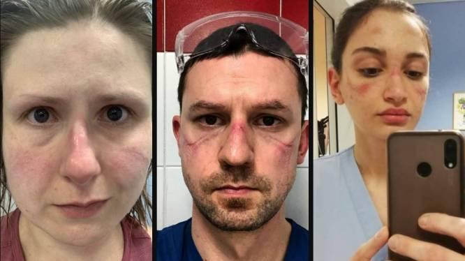"""""""Ik voel me kapot en we zitten nog maar in het begin"""": zo zwaar wegen beschermende maskers die verplegers moeten dragen"""