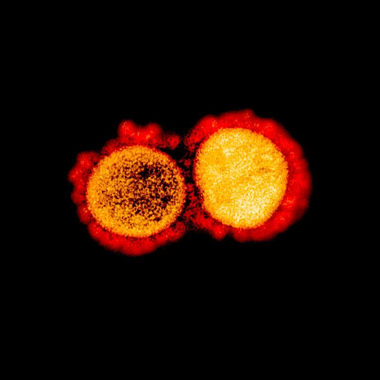Deeltjes van het nieuwe coronavirus, geïsoleerd uit een patiënt. Beeld AFP