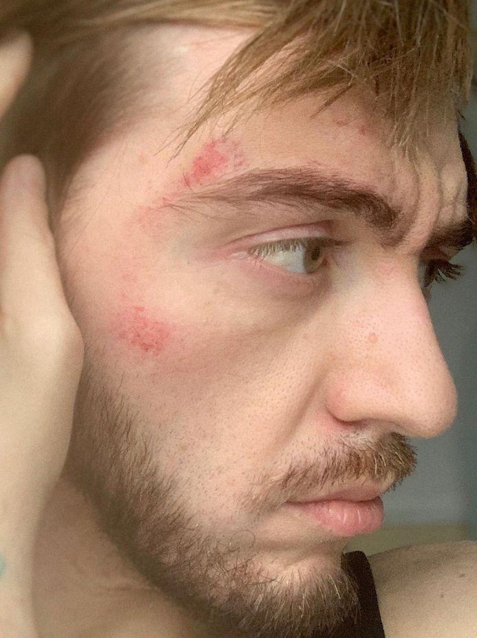 Eric a subi des séquelles de l'agression homophobe dont il a été victime à Charleroi