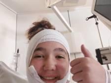 """Elise, 14 ans, gravement brûlée après une expérience qui a mal tourné en cours de chimie: """"Je n'ai rien pu faire"""""""