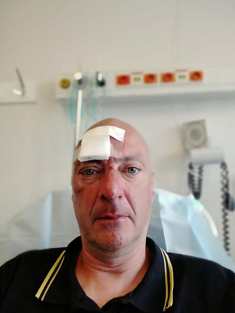 Slachtoffer Danny Geijsen moest onder meer genaaid worden aan zijn voorhoofd.