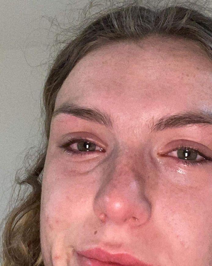 Ketnetwrapster Gloria Monserez (19) deelt op Instagram beelden van haar rood doorlopen ogen en acne.
