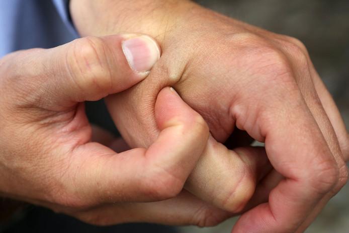Een microchip-implantaat tussen de duim en wijsvinger.