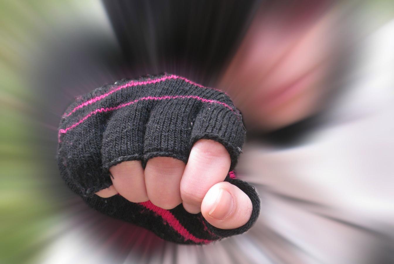 Jongen (17) tegen hoofd geslagen door groep in Tilburg.