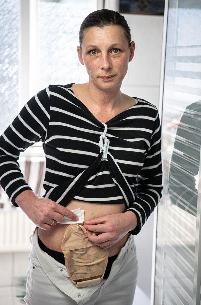 Esther Jorissen met haar stomazakje.