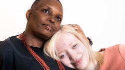 """Ex-topmodel Lisa Winckelmans (21) werd jarenlang gepest: """"Roept iemand nu 'albino' naar me, dan stap ik erop af"""""""