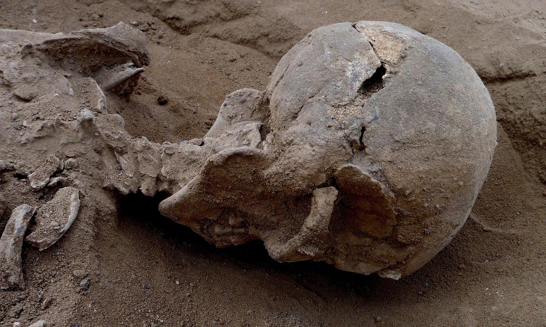 Een ingeslagen schedel die gevonden werd in Kenia