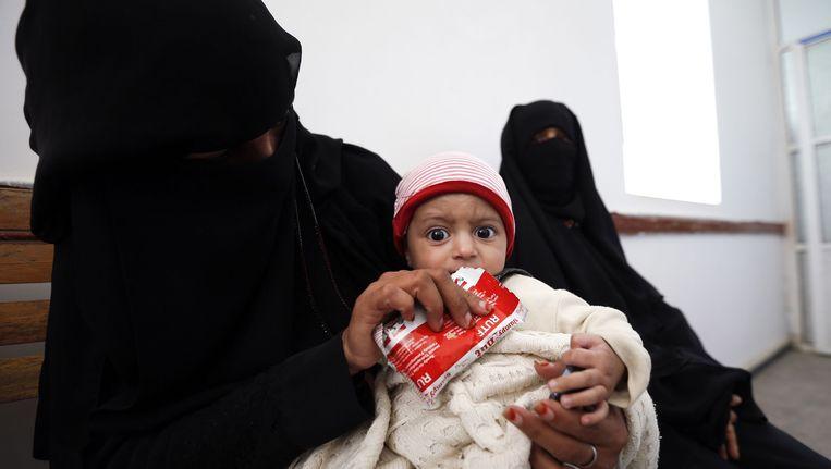 Een ondervoed kind krijgt verzorging in een medisch centrum in Bani Hawat in de buitenwijken van de Jemenitische hoofdstad Sanaa.