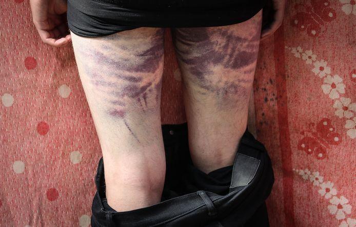 Blauwe plekken op de benen van een demonstrant.