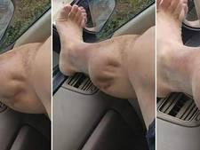 Been van sporter lijkt wel bezeten door alien tijdens heftige spierkramp