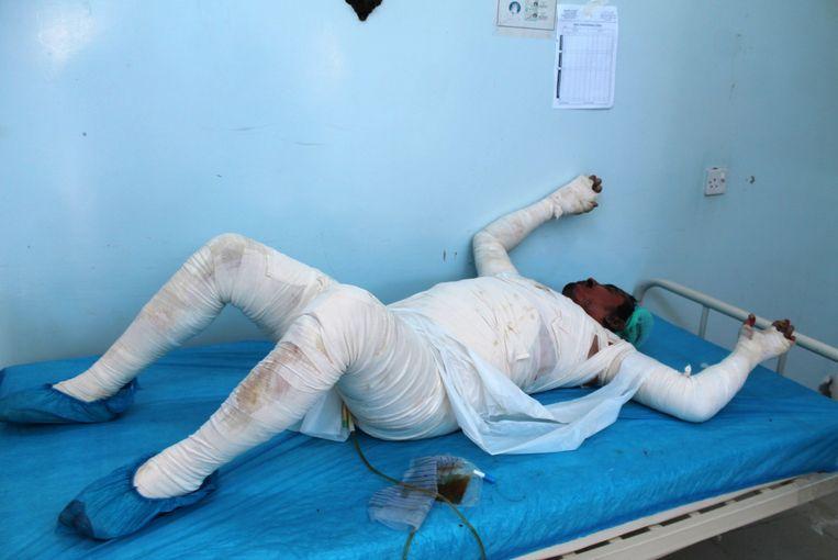 Een Jemeniet die gewond is geraakt wordt behandeld in een ziekenhuis in de havenstad Hodeidah. Beeld AFP