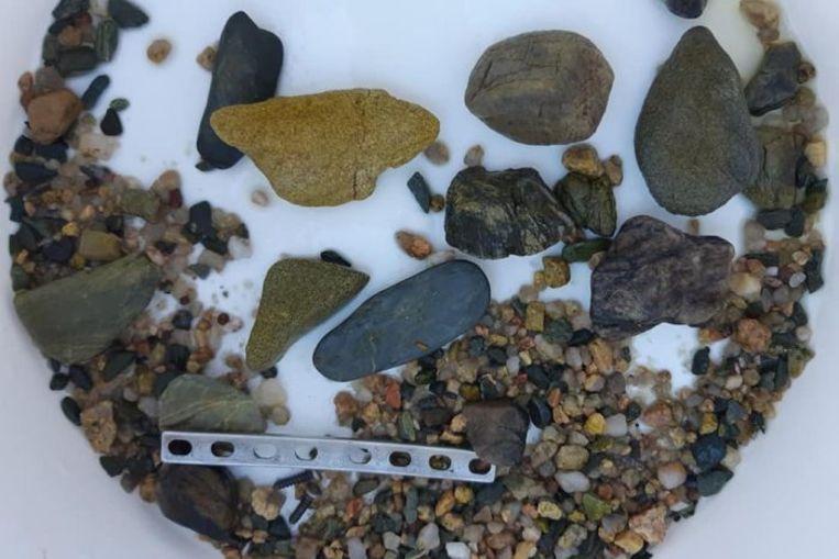 In de maag werden ook heel wat stenen aangetroffen die de krokodil inslikt om het eten te kunnen verteren.