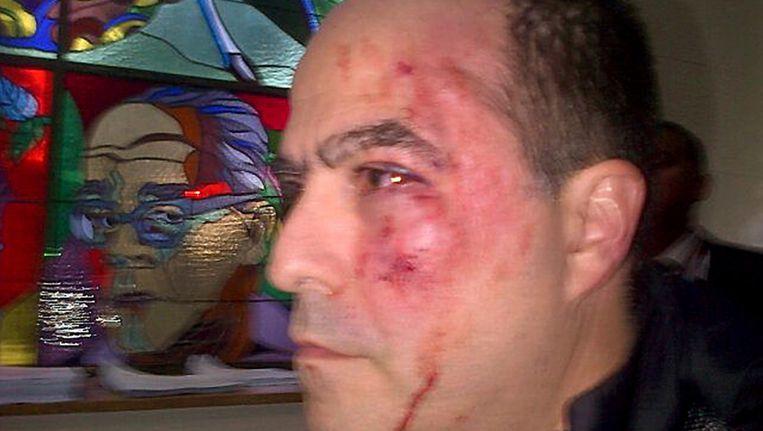 Oppositielid Julio Borges liep flinke klappen op tijdens de rel in het Venezolaanse parlement. Beeld ANP