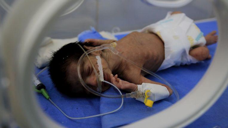 Misvormde en ondervoede baby in Al Joumhory ziekenhuis, Hajjah Beeld Mahmoud Elsobky