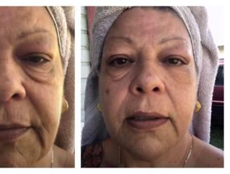 Deze spectaculaire oogcrème doet zelfs de extreemste wallen in 3 minuten verdwijnen, hoe werkt het en is het veilig? 3 huidexperten lichten toe
