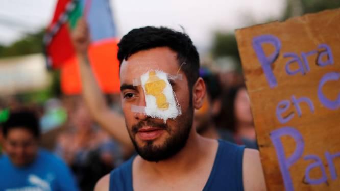 Na de honderden gewonden: Chileense politie belooft betogers niet langer met rubberkogels te beschieten