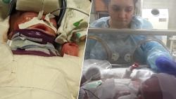 Baby die geboren werd zonder huid mag ziekenhuis verlaten