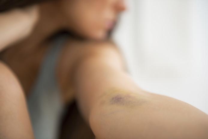Een vrouw is mishandeld door haar ex-vriend in Kaatsheuvel. Foto ter illustratie