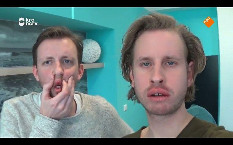 Stijn (links) en Daan met hun verminkte Streetlab-lippen. Beeld screenshot Maaike Bos