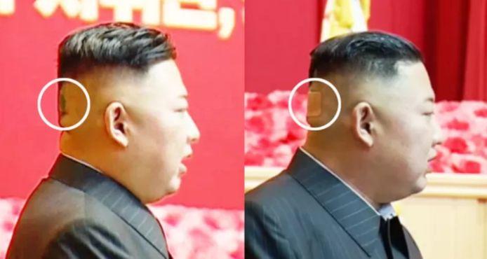 Le leader nord-coréen est récemment apparu avec un pansement et un bleu à l'arrière de la tête.