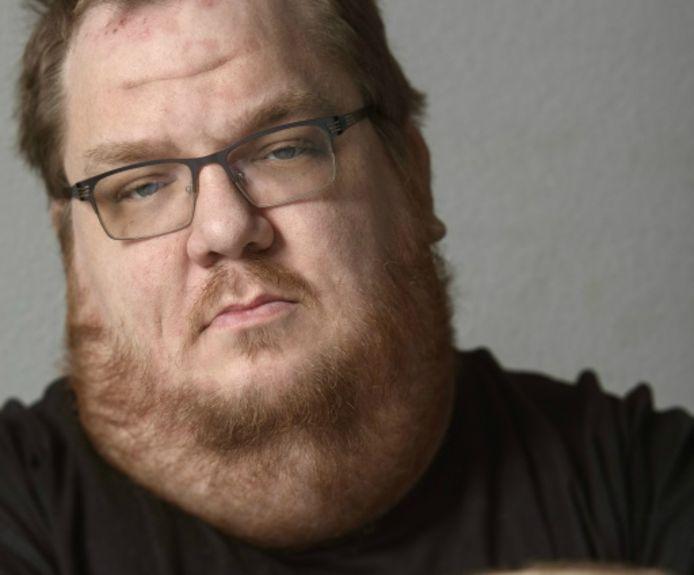 Eelco (38) uit Tilburg heeft gekozen voor euthanasie.