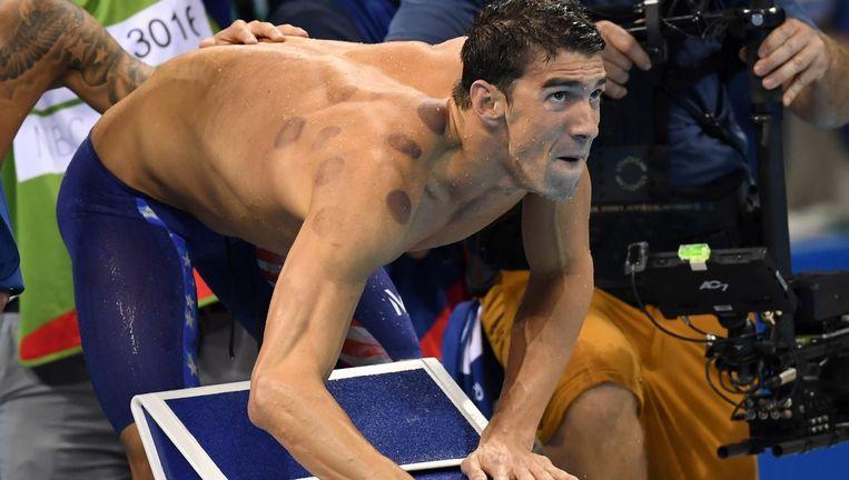 Michael Phelps met zuignapvlekken op de Olympische Spelen. Beeld null