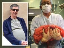'Ik lust helemaal geen bier': Bierbuik blijkt kwaadaardige tumor van 13 kilo