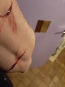 De snijwonden in de arm waren dieper.