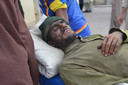 Een mijnwerker die gewond geraakte tijdens de explosie.