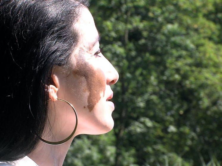 Padminie (49) veranderde door aandoening compleet van huidskleur