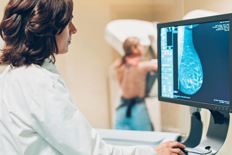 Mammografie, de controle op borstkanker, is een van de bevolkingsonderzoeken die in 2020 minder zijn uitgevoerd als gevolg van de coronacrisis. Beeld Getty Images