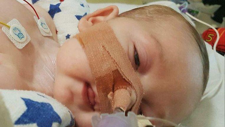 Charlie is intussen tien maanden oud, maar kan niet slikken, horen, bewegen of huilen. De ouders krijgen kritiek dat ze het kind in leven willen houden: