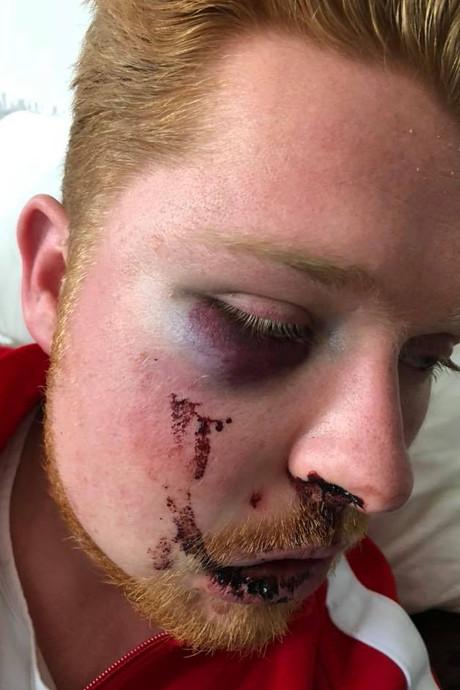 Man (25) zwaar mishandeld op Stratumseind, politie zoekt getuigen
