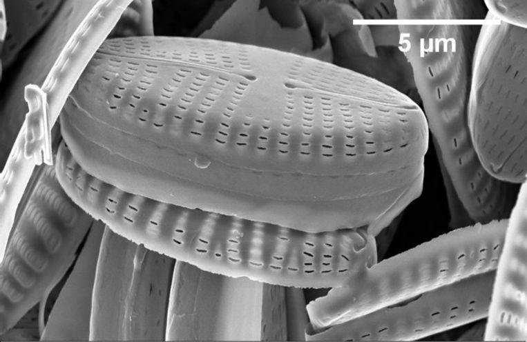 Een detailopname van diatomee-algen, een van de kanshebbers Beeld