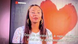 """Nederland in de ban van botoxmeisje: """"Ze krijgt haar ogen amper open"""""""